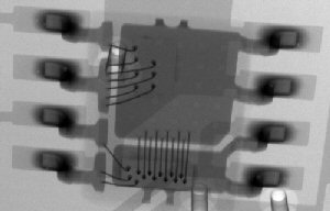 X-ray image of on-chip wire bonding