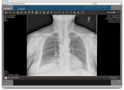 itMD medical image sharing and online image viewer