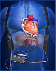 ReliantHeart HeartAssist5®