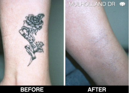 100 tattoo removal with picosure lake picosure for How much is picosure tattoo removal