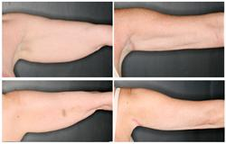 SmartLipo Before and After Pictures