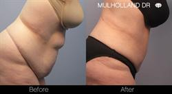Tummy Tuck Toronto Patient Results