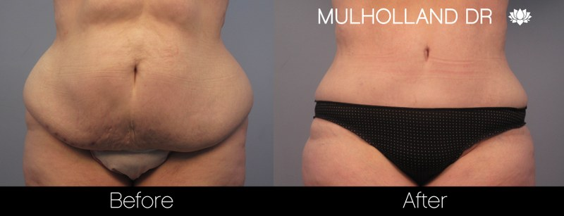 Plastic Surgery For Love Handles Liposuction Harley