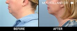 Toronto Liposuction Patient Before and After Photo 3