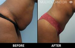 Toronto Liposuction Patient Before and After Photo 4