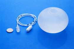 The Elipse Gastric Balloon