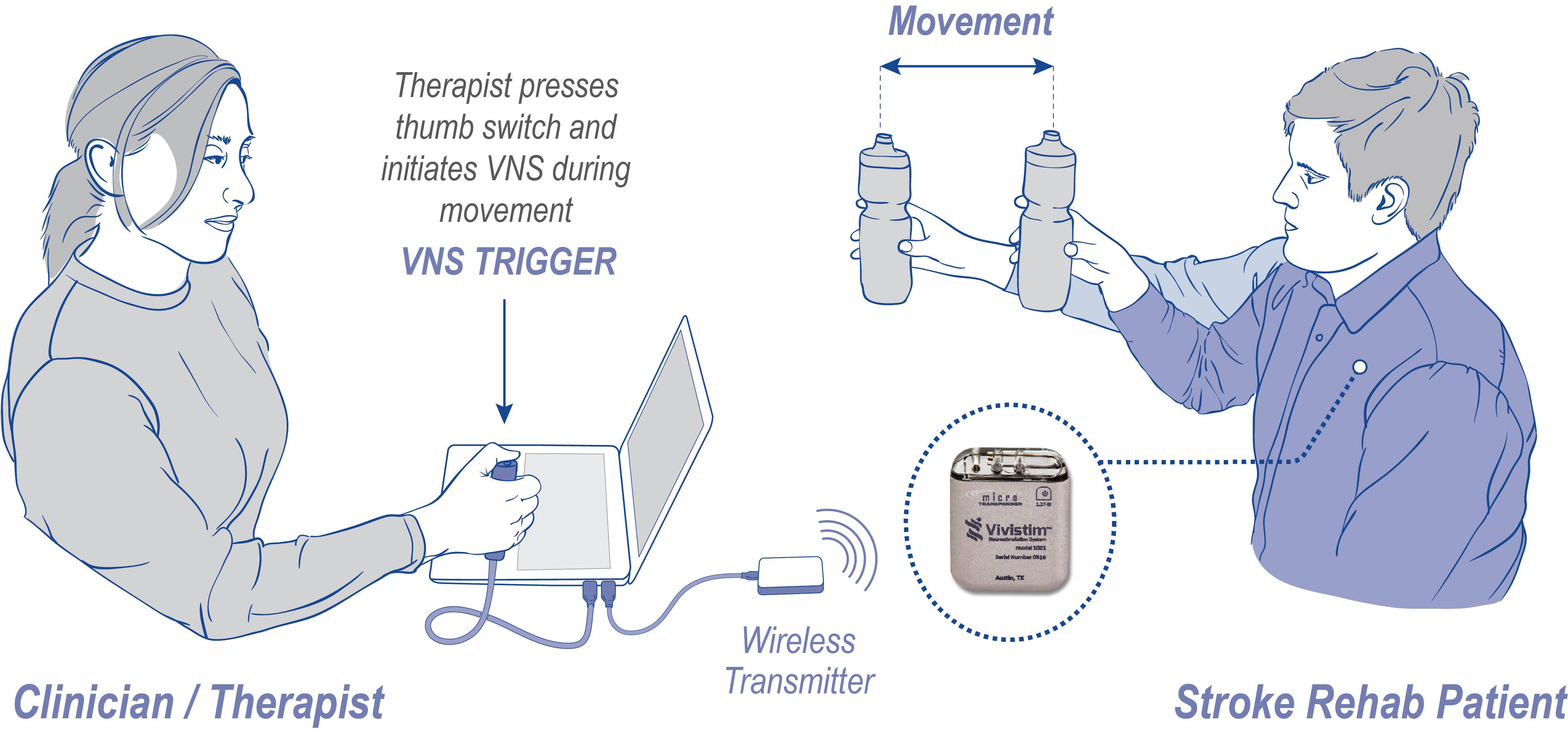 Microtransponder tinnitus trials 2013 tickets