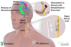 Stroke Therapy Diagram