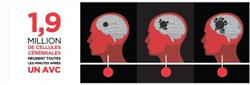 1,9 million de cellules cérébrales meurent toutes les minutes après un AVC