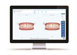 Invisalign® ClinCheckPro 5.0 Software