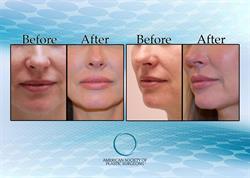 Lip Implants Gaining Popularity